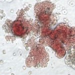 Le cellule del cordone ombelicale più efficaci di quelle embrionali