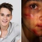 Il giovane gay ammette: «nessun attacco omofobo, mi sono fatto male da solo»
