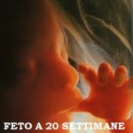 «Che importa se l'aborto termina una vita umana?»