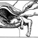 Michigan (Usa): l'aborto a nascita parziale diventa illegale
