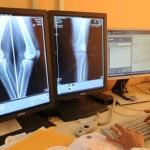 Uno dei miracoli di Lourdes:  tumore scomparso e articolazione ricostruita